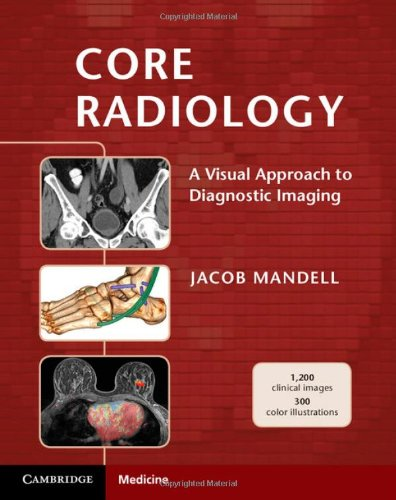 Core Radiology - A Visual Approach to Diagnostic Imaging