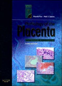 Algebra and Trigonometry 6th Edition Ron Larson pdf